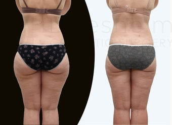 37 year old women body jet liposuction to remove fat and shaping of thighs before 1127698