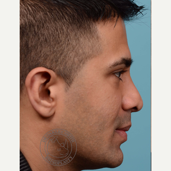 35-44 year old man treated with Revision Rhinoplasty