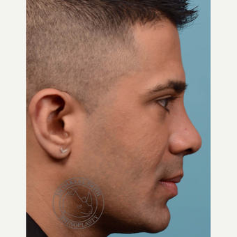 35-44 year old man treated with Revision Rhinoplasty after 3092655