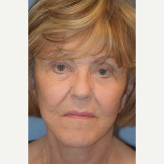 76 year old female treated with cheek lift after 3245894