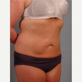 35-44 year old woman treated with Vaser Liposuction after 2479159