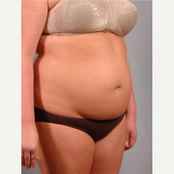 35-44 year old woman treated with Vaser Liposuction before 2479159