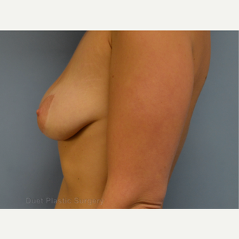 25-34 year old woman treated with Breast Lift with Implants before 3367895