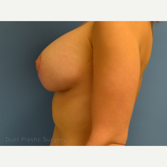 25-34 year old woman treated with Breast Lift with Implants after 3367895
