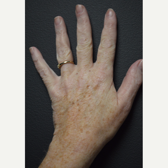 Single treatment using Cutera's Pico Genesis laser to treat brown spots on hands before 3844069
