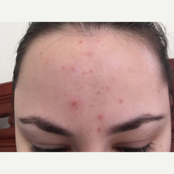 25-34 year old woman treated with Microneedling