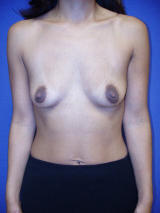 Breast Augmentation Surgery before 103738
