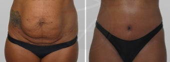 35-44 year old woman treated with Tummy Tuck before 1807014
