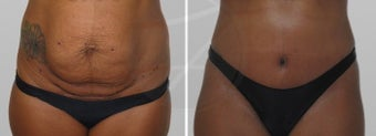 35-44 year old woman treated with Tummy Tuck after 1807014