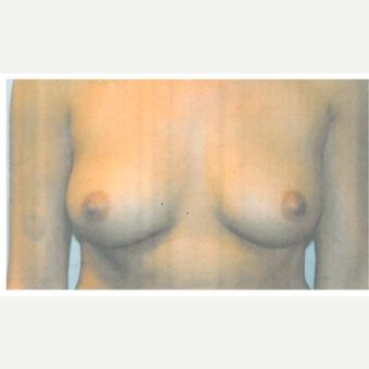 18-24 year old woman treated with Breast Augmentation before 3103118