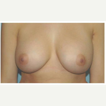 18-24 year old woman treated with Breast Augmentation after 3103118
