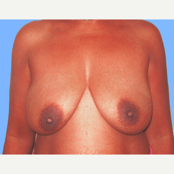Breast Lift with Implants before 3748626