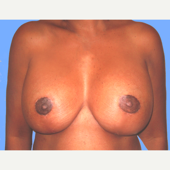 Breast Lift with Implants after 3748626