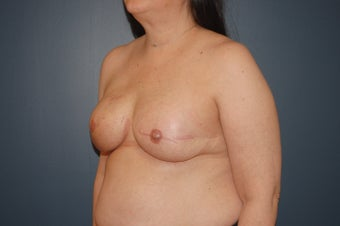 Breast Reconstruction after mastectomy 1104916