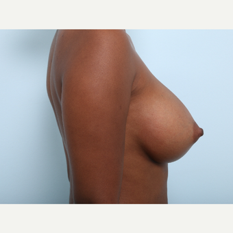 Breast Augmentation after 3425519