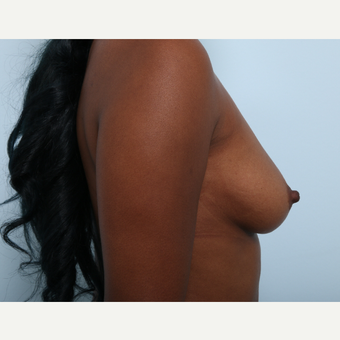 Breast Augmentation before 3425519
