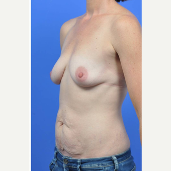 35-44 year old woman treated with Breast Augmentation before 3289207