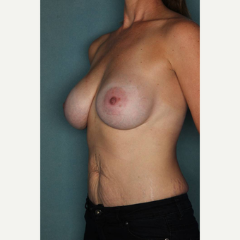 35-44 year old woman treated with Breast Augmentation after 3289207