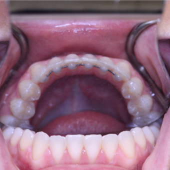 32 year old woman treated with Invisalign to Correct Crowding and Fixed Retainer for retention after 3724935