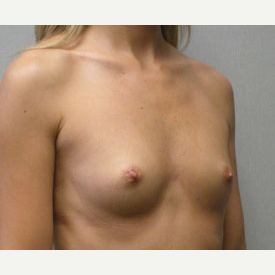 Breast Augmentation before 3681049