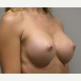 Breast Augmentation after 3681049