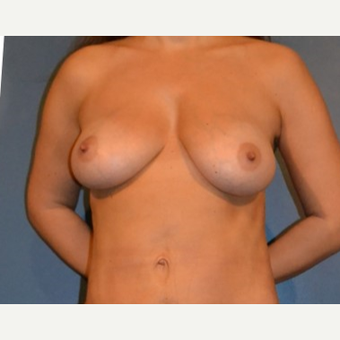 35-44 year old woman treated with Breast Fat Transfer after 3132058