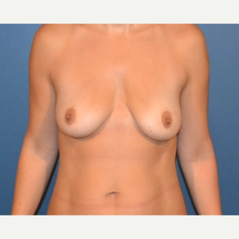 35-44 year old woman treated with Breast Fat Transfer before 3132058
