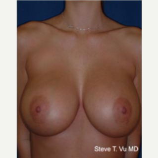 25-34 year old woman treated with Breast Augmentation after 3577084