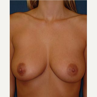 25-34 year old woman treated with Breast Augmentation before 3577084