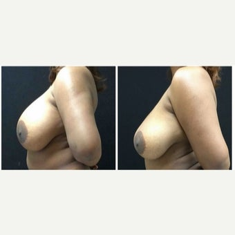 35-44 year old woman treated with Breast Implant Removal before 1942412