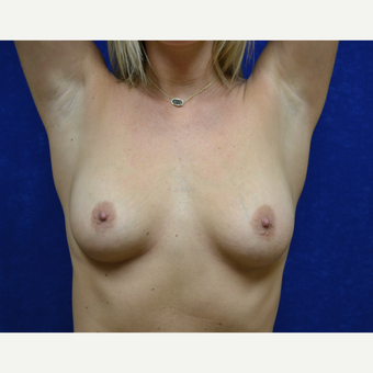 25-34 year old man treated with Breast Augmentation before 3664422