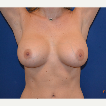 25-34 year old man treated with Breast Augmentation after 3664422