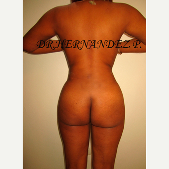 25-34 year old woman treated with Liposculpture after 3466594