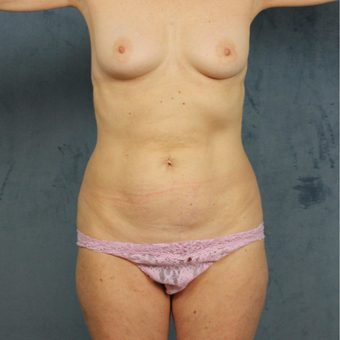 58 year old mommy makeover with subpectoral breast augmentation, tummy tuck and liposculpting before 3419160