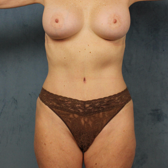 58 year old mommy makeover with subpectoral breast augmentation, tummy tuck and liposculpting after 3419160