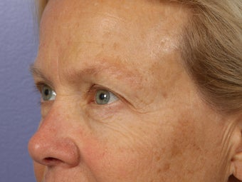 Eyelid Surgery before 280870