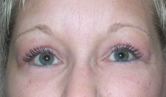 Blepharoplasty after 611308