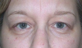 Blepharoplasty before 611308