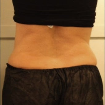 CoolSculpting for Mother of Five after 1716805