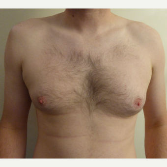 35-44 year old man treated with Male Breast Reduction before 3501816