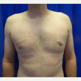 35-44 year old man treated with Male Breast Reduction after 3501816