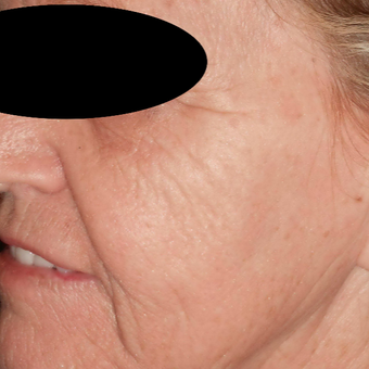 65-74 year old woman treated with Filler and Resurfacing Laser Treatment before 3183889