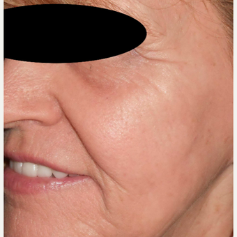 65-74 year old woman treated with Filler and Resurfacing Laser Treatment after 3183889