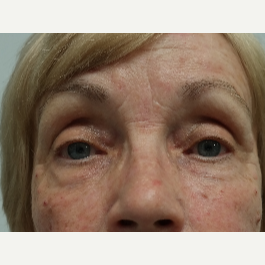 65-74 year old woman treated with Restylane Lyft after 2943150