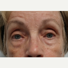 65-74 year old woman treated with Restylane Lyft before 2943150