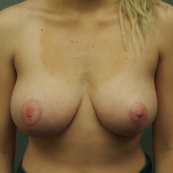 18-24 year old woman treated with Breast Lift after 2897737