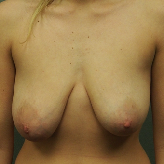 18-24 year old woman treated with Breast Lift before 2897737