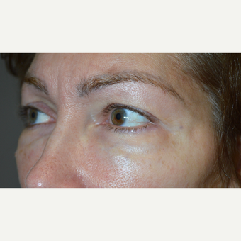 49 year old female, with previous filler injections, underwent lower blepharoplasty for eye bags. before 2830334