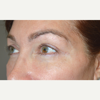49 year old female, with previous filler injections, underwent lower blepharoplasty for eye bags. after 2830334