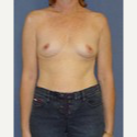 35-44 year old woman treated with Breast Augmentation before 3622575